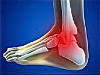 Entorse du ligament lat ral pied cheville for Douleur interieur du pied