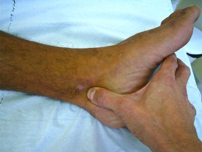 douleur en dessous de la cheville
