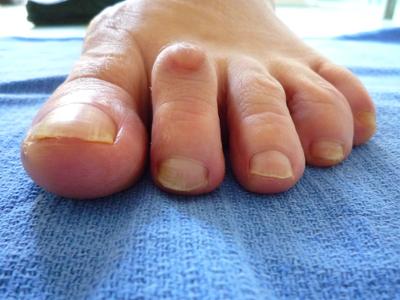 cor doigt de pied