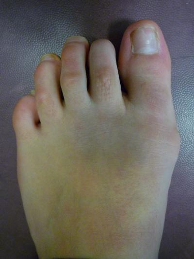phalange orteil cassé