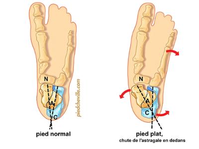 Pied plat tendinite du tibial post rieur pied cheville for Douleur interieur du pied